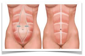 Ejemplo gráfico claro de lo que es una diástasis abdominal