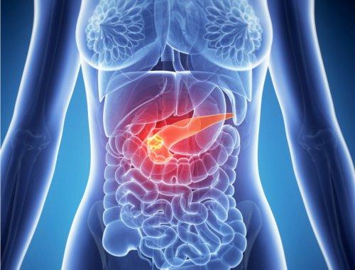 pancreatitis-iocir