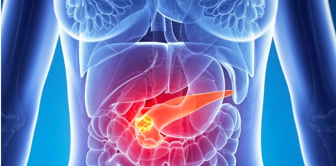 cancer de pancreas-IOCir.com/blog