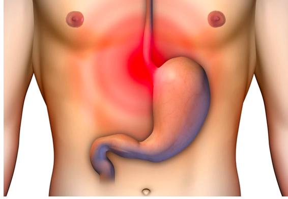 reflujo esofagico