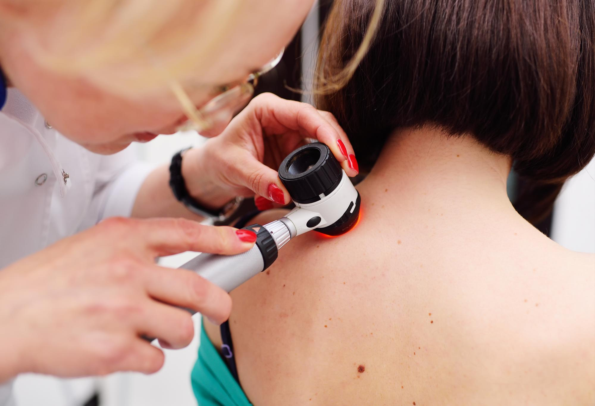 melanoma-cancer piel-iocir-cirujanos-huelva