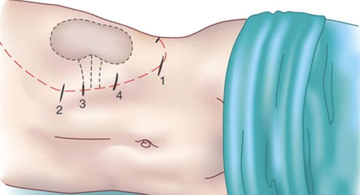 suprarrenalectomia-iocir