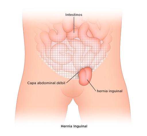 hernia-abdominal-blog-iocir