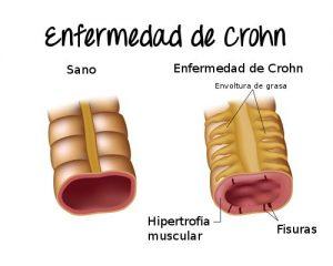 Gráfico de la enfermedad de Crohn