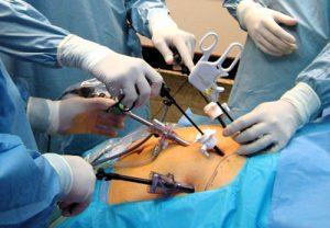 Técnica por laparoscopia