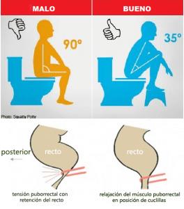 La postura más propicia para defecar es en un ángulo de 35º