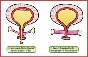 Un buen tono muscular es básico para prevenir la incontinencia