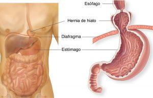 Explicación gráfica de una hernia de hiato