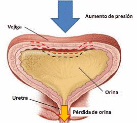 Una debilidad en la musculatura o presión hacia la vegija puede resultar en una incontinencia