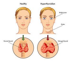 Un síntoma evidente de la enfermedad de Graves es que los ojos sobresalen