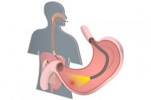 La endoscopia nos ayuda a detectar las úlceras