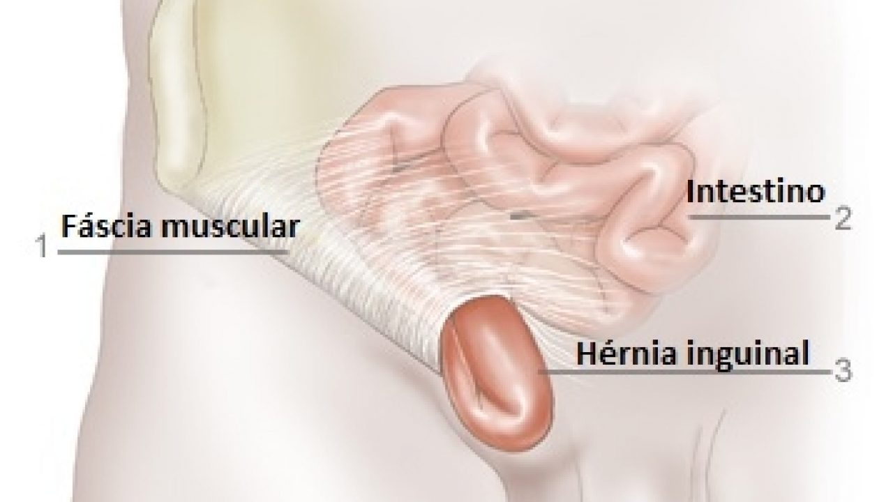 Umbilical por embarazo hernia