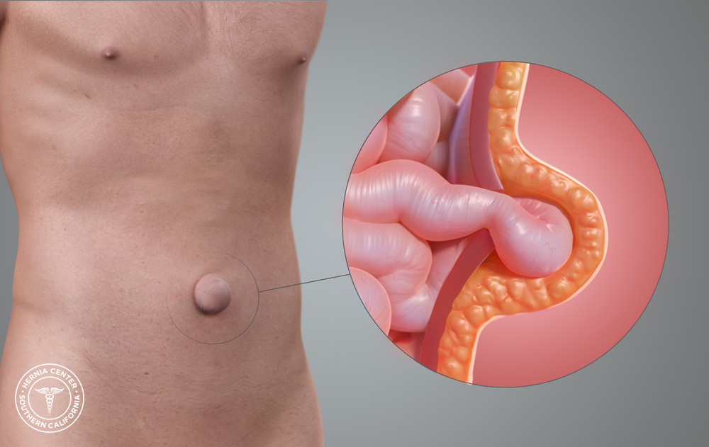 hernia umbilical imagen principal
