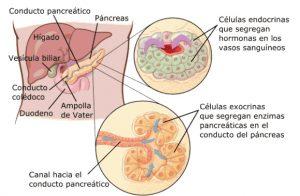 cancer de pancreas-IOCir.com/blog