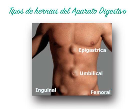 hernias : tipos y tratamientos