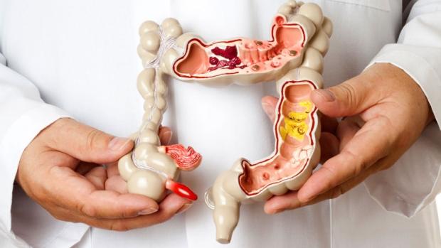 sindrome del intestino irritable, sindrome de colon irritable, colon espastico, colitis mucosa, iocir, cirujanos en huelva, medicos en huelva
